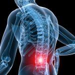 L'entraînement de force améliore le mal de dos