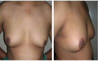 Risque-de-steatose-hepatique-et-de-gynecomastie
