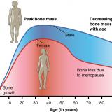 Tableau 3: L'ostéoporose, n'est pas un problème spécifiquement féminin. Les hommes perdent de la masse osseuse également.