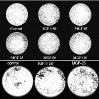 Migration de myocytes pour l'IGF-1 et le MGF.