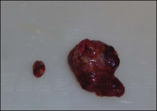 noix et cancer de la prostate
