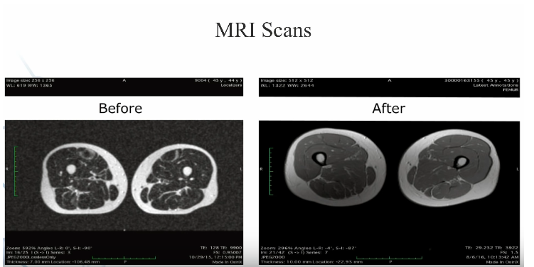 scans-mri-masse-musculaire